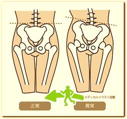 歪んだ骨盤を矯正していきます