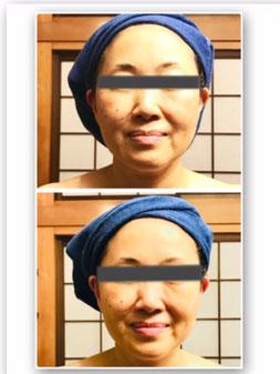 50代女性 至福のリフティング美肌 1回の体験結果