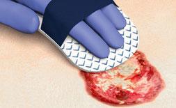 Cutimed Debri Clean Anwendung auf einer Wunde