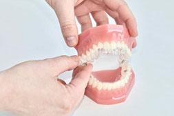 Kieferorthopädie Dr. Richard Wiesner in Gröbenzell bietet Invisalign an, die unsichtbare Zahnspange