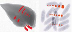 DualX Röntgenbild