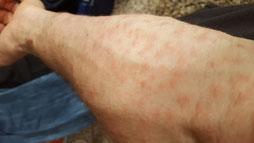 Eine Eiche steht in Ihrer Nähe; Es juckt auf der Haut und Sie haben Pickelchen, vielleicht sogar Atemwegsprobleme dann kann das der Grund sein: EPS