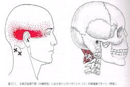 後頭下筋群のトリガーポイント