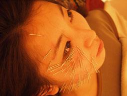 東洋健美式美容鍼灸