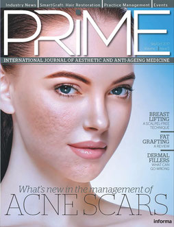 PRIME, International Journal of Aesthetic and Anti-Aging Medicine, Acne scars