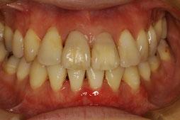 歯ぐきの再生治療後