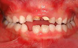 八戸市の歯科くぼた歯科医院乳歯の治療