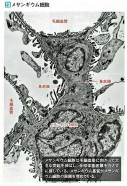 メサンギウム細胞