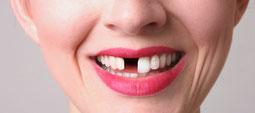 Quiero ponerme un diente