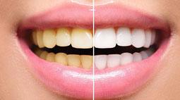Quiero dientes más blancos