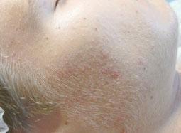 Akne Behandlung vorher / nachher