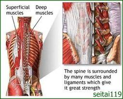 腰椎の筋膜痛