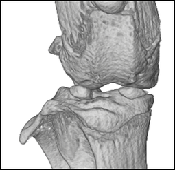 Mouse knee by microCT
