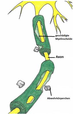 Abb. 2: Axon nach Erkrankung an MS