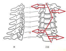 首痛、頚椎症、寝違いの原因