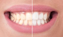Zahnreinigung, Mundhygiene, Protect-Prophylaxe, Zähne Putzen, Heilpraktiker, Homöopathie
