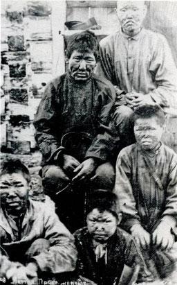 Прокаженные якутской области