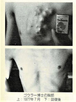 ゴウラ―博士の胸部:1977年7月/回復後