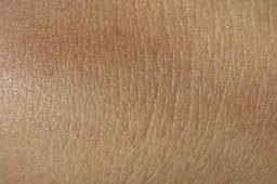 respiration pore peau