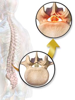 脊柱管 狭窄症 痛み 治療 痺れ