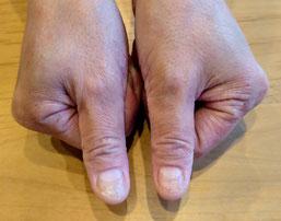 大分市 みつか漢方養生堂 掌蹠膿疱症④-2