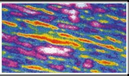 Nach der 10-tägigen Anwendung mit Hautpunktur-Instrument: wesentlich weniger rote Flächen (also weniger Falten)