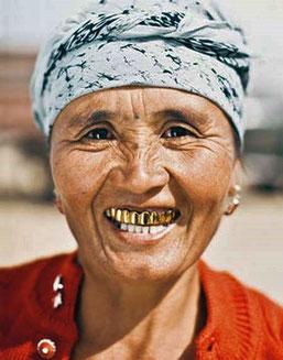 In Turkmenistan und Usbekistan tragen viele ihren Reichtum im Mund.