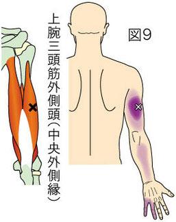 上腕三頭筋外側頭トリガーポイントによる上腕・前腕後側と手指内側の痛み
