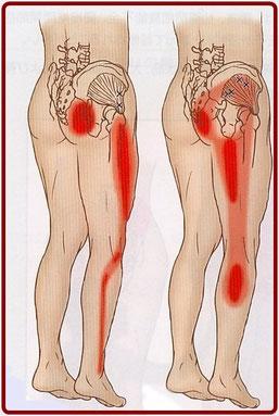 足や膝の外側が痛い,トリガーポイント