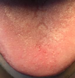 Querfurchen auf der Zunge als Zeichen für empfindsames Nervensystem