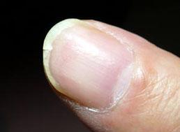 ネイルバー ヴィラーゴ|症例 縦割れした爪