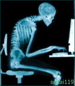 札幌市-悪い姿勢-パソコンによる首、背中の痛み