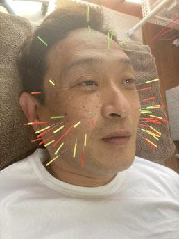 小牧 鍼灸 はり 治療 美容鍼 腰痛 坐骨神経痛 自律神経 頭痛 めまい 過敏性腸症候群 下痢 便秘 食欲不振