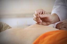 Akupunktur-Heilpraktiker-München-Berg-am-Laim