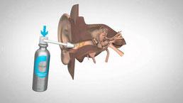 Le spray de nettoyage anti cérumen est la solution la plus facile d'utilisation.