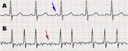 Рисунок 1. А – нормальная ЭКГ; Б - пример мерцательной аритмии – нерегулярное сокращение сердца.