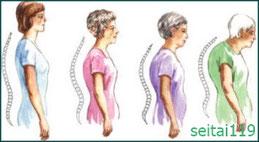 腰痛予防の正しい姿勢