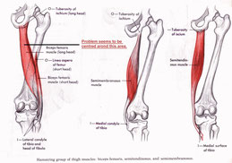 膝の痛みストレッチ