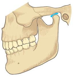 顎関節症 あご
