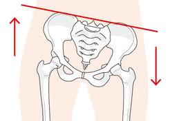骨盤、股関節、恥骨、ソケイ部、坐骨のゆがみ