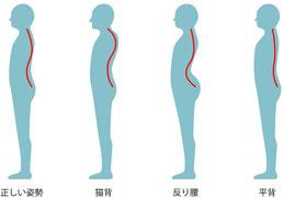 猫背・背中のハリ・背骨のゆがみの症状