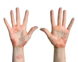 Quand commencer lappât à atopitcheskom la dermatite