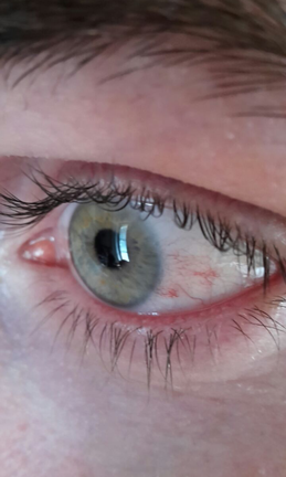 Lidrandentzündung (Blepharitis)