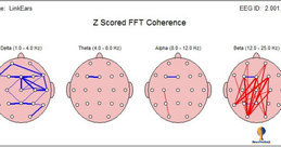 Fig. 2. Se muestra la conectividad entre zonas inter o intrahemisféricas. Las lineas azúles indican hipoconectividad, desconexión o conexión baja. Las líneas rojas indican hiperconectividad.