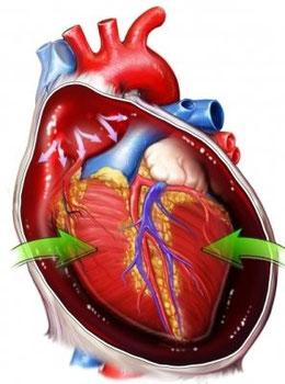 Taponamiento Cardiaco: Triada de Beck