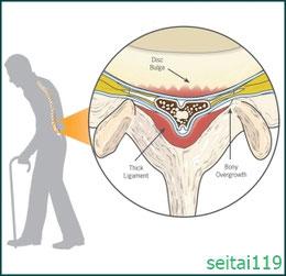 札幌市-腰部脊柱管狭窄症-2