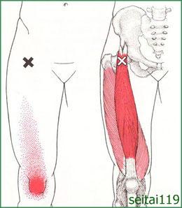 札幌市でトリガーポイント慢性膝痛治療おすすめ