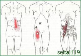 札幌市で慢性腰痛治療の おすすめ,ヘルニア,ぎっくり腰,狭窄症
