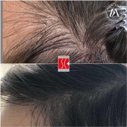 für feinen und dünnen Haarwuchs, Haarausfall, Glatz