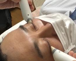 眼精疲労への鍼灸は福岡市博多区のはり灸こんどうの温灸施術がおススメです